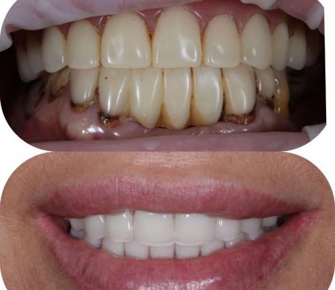 Новые зубы за один день – это возможно?